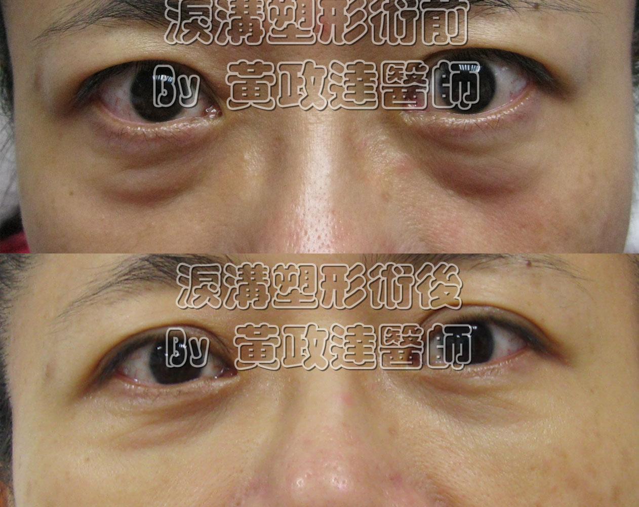 淚溝失敗玻尿酸高雄桃園推薦黃政達醫師-毛毛蟲 002