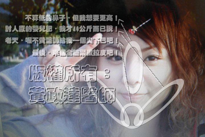 玻尿酸隆鼻 瘦小臉 全臉拉皮01
