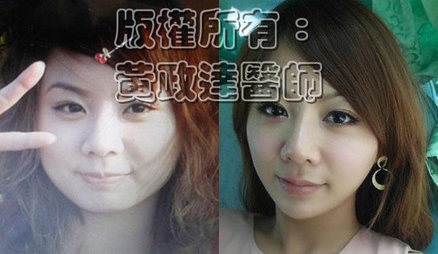 玻尿酸隆鼻 瘦小臉 全臉拉皮04