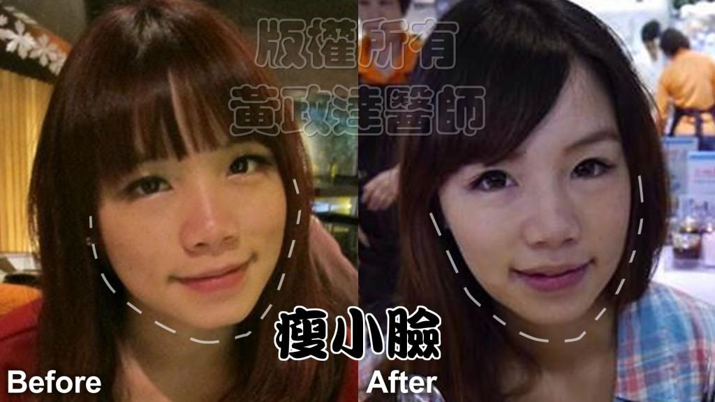 瘦小臉 術前術後 推薦 022