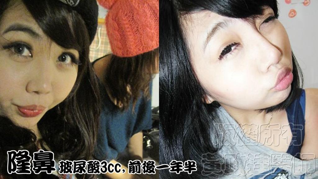 隆鼻 009