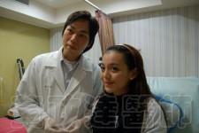 玻尿酸微整形隆鼻術前術後比較-Kiwi06 拷貝