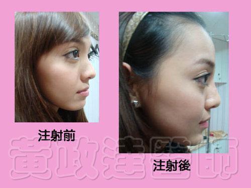 玻尿酸微整形隆鼻術前術後比較-Kiwi08 拷貝
