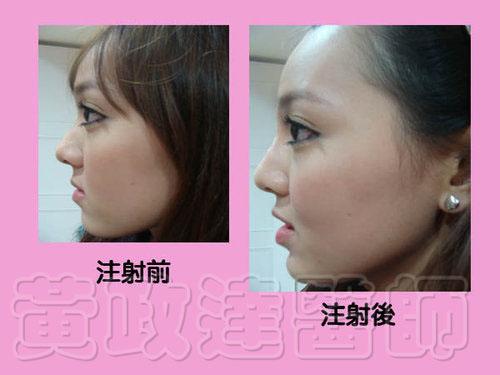 玻尿酸微整形隆鼻術前術後比較-Kiwi09