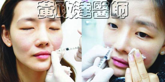 豐頰  蘋果肌 淚溝 Joan 05