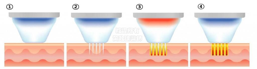 桃園-玻尿酸 極限音波拉皮 複合式微整形 電波拉皮 回春-黃政達醫師-醫生-推薦 020
