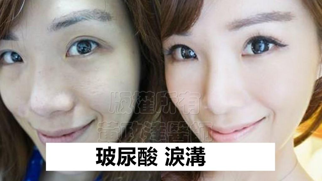桃園-玻尿酸-淚溝型黑眼圈-眼袋型淚溝-彥靚-黃政達醫師-醫生-推薦-001