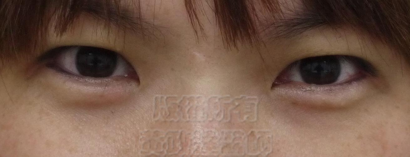 桃園 眼袋型黑眼圈 淚溝型黑眼圈 玻尿酸 淚溝 回春 黃政達醫師 醫生 眼袋 0031