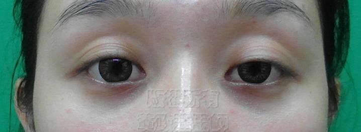 桃園 眼袋型黑眼圈 淚溝型黑眼圈 玻尿酸 淚溝 回春 黃政達醫師 醫生 眼袋 006
