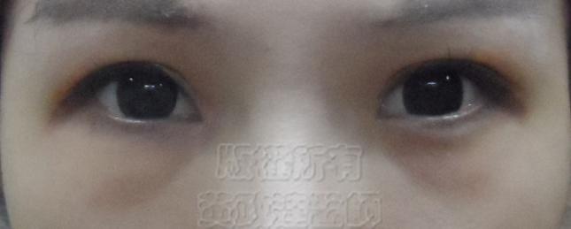 桃園 眼袋型黑眼圈 淚溝型黑眼圈 玻尿酸 淚溝 回春 黃政達醫師 醫生 眼袋 007