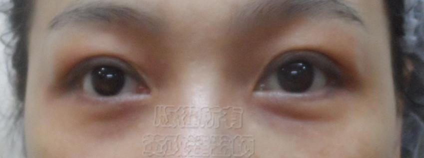 桃園 眼袋型黑眼圈 淚溝型黑眼圈 玻尿酸 淚溝 回春 黃政達醫師 醫生 眼袋 009
