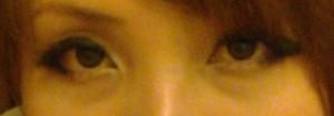 桃園 眼袋型黑眼圈 淚溝型黑眼圈 玻尿酸 淚溝 回春 黃政達醫師 醫生 眼袋 032
