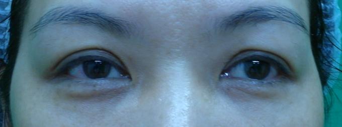 桃園 眼袋型黑眼圈 淚溝型黑眼圈 玻尿酸 淚溝 回春 黃政達醫師 醫生 眼袋 041
