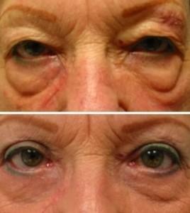 眼袋 黑眼圈 消除 手術 桃園 玻尿酸 眼袋型淚溝  淚溝型黑眼圈  淚溝 黃政達醫師 推薦 101