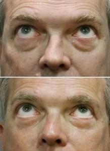 眼袋 黑眼圈 消除 手術 桃園 玻尿酸 眼袋型淚溝  淚溝型黑眼圈  淚溝 黃政達醫師 推薦 201