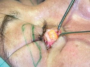 眼袋 黑眼圈 消除 手術 桃園 玻尿酸 眼袋型淚溝  淚溝型黑眼圈  淚溝 黃政達醫師 推薦 401