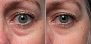 眼袋 黑眼圈 消除 手術 桃園 玻尿酸 眼袋型淚溝  淚溝型黑眼圈  淚溝 黃政達醫師 推薦 501