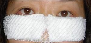 黑眼圈 眼袋 消除 手術 桃園 玻尿酸 眼袋型淚溝  淚溝型黑眼圈  淚溝 黃政達醫師 推薦 101
