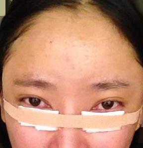 黑眼圈 眼袋 消除 手術 桃園 玻尿酸 眼袋型淚溝  淚溝型黑眼圈  淚溝 黃政達醫師 推薦 201