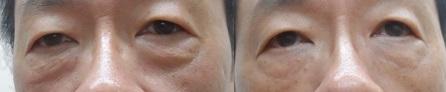 黑眼圈 眼袋 消除 手術 桃園 玻尿酸 眼袋型淚溝  淚溝型黑眼圈  淚溝 黃政達醫師 推薦 208