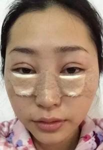 黑眼圈 眼袋 消除 手術 桃園 玻尿酸 眼袋型淚溝  淚溝型黑眼圈  淚溝 黃政達醫師 推薦 401