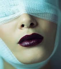 黑眼圈 眼袋 消除 手術 桃園 玻尿酸 眼袋型淚溝  淚溝型黑眼圈  淚溝 黃政達醫師 推薦 501