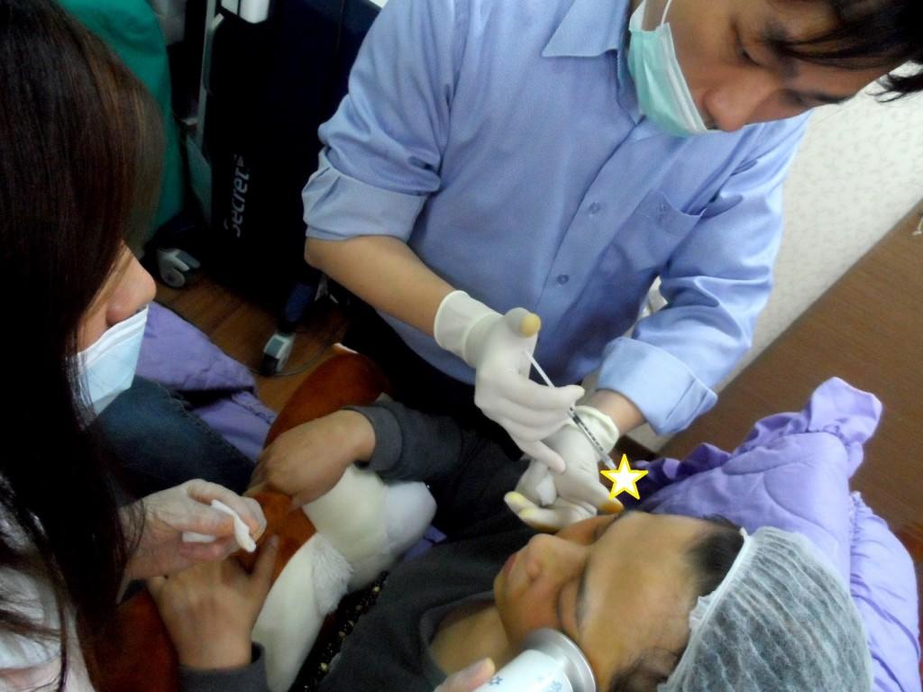 0021 桃園 玻尿酸 肉毒桿菌 複合式微整形 眼袋 淚溝 黃政達醫師 醫生 回春 除皺 推薦