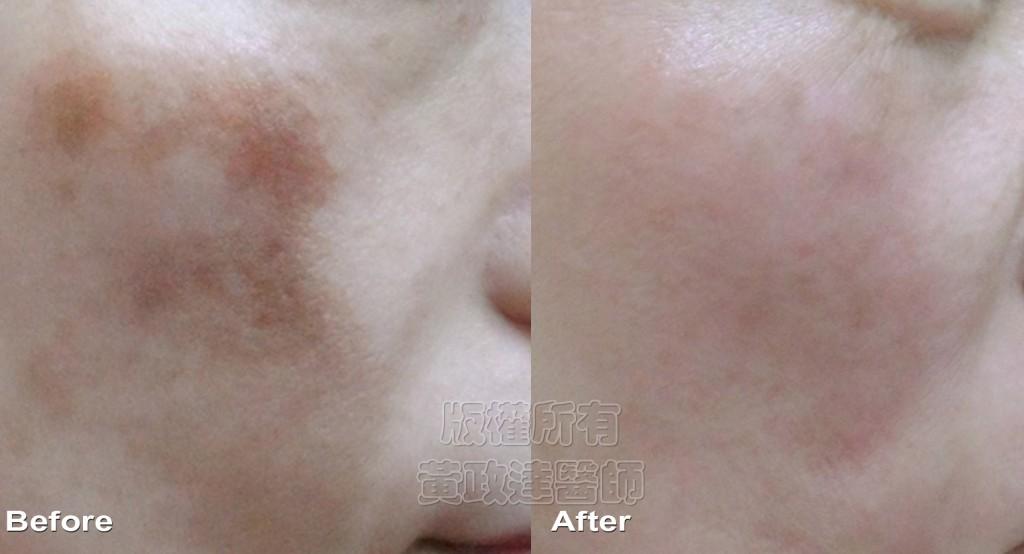 003 桃園 肝斑 玻尿酸 肉毒桿菌 眼袋 淚溝 黃政達醫師 醫生 推薦
