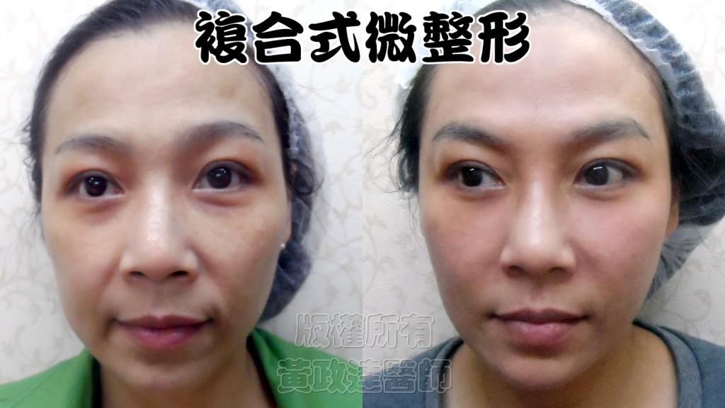 014 桃園 玻尿酸 肉毒桿菌 複合式微整形 眼袋 淚溝 黃政達醫師 醫生 回春 除皺 推薦