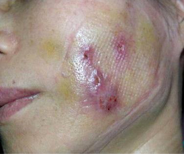 019 桃園 玻尿酸 肉毒桿菌 複合式微整形 眼袋 淚溝 黃政達醫師 醫生 回春 除皺 推薦