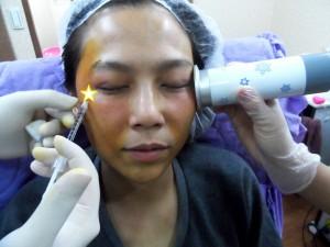 0201 桃園 玻尿酸 肉毒桿菌 複合式微整形 眼袋 淚溝 黃政達醫師 醫生 回春 除皺 推薦