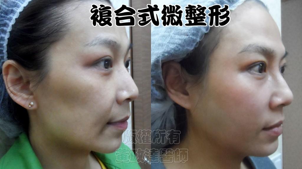 022 桃園 玻尿酸 肉毒桿菌 複合式微整形 眼袋 淚溝 黃政達醫師 醫生 回春 除皺 推薦