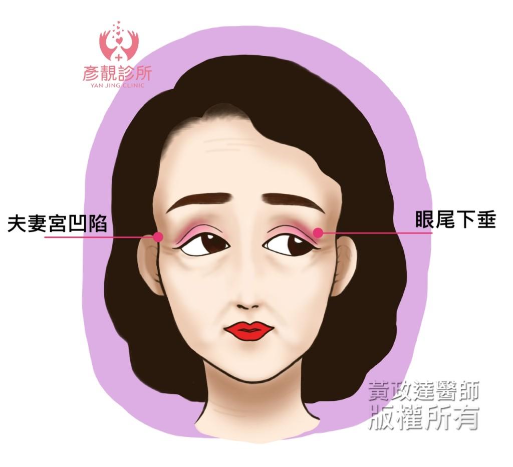 002 桃園 夫妻宮 玻尿酸 豐頰  眼袋 淚溝 法令紋 肉毒桿菌 黃政達醫師 推薦