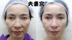 2 桃園 夫妻宮 玻尿酸 豐頰  眼袋 淚溝 法令紋 肉毒桿菌 黃政達醫師 推薦