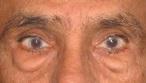 新竹 眼袋 黑眼圈 桃園 台北 玻尿酸 眼袋型淚溝 淚溝型黑眼圈 淚溝 消除改善 價格費用 推薦 100