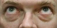 新竹 眼袋 黑眼圈 桃園 台北 玻尿酸 眼袋型淚溝 淚溝型黑眼圈 淚溝 消除改善 價格費用 推薦 300