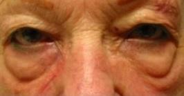 新竹 眼袋 黑眼圈 桃園 台北 玻尿酸 眼袋型淚溝 淚溝型黑眼圈 淚溝 消除改善 價格費用 推薦 500